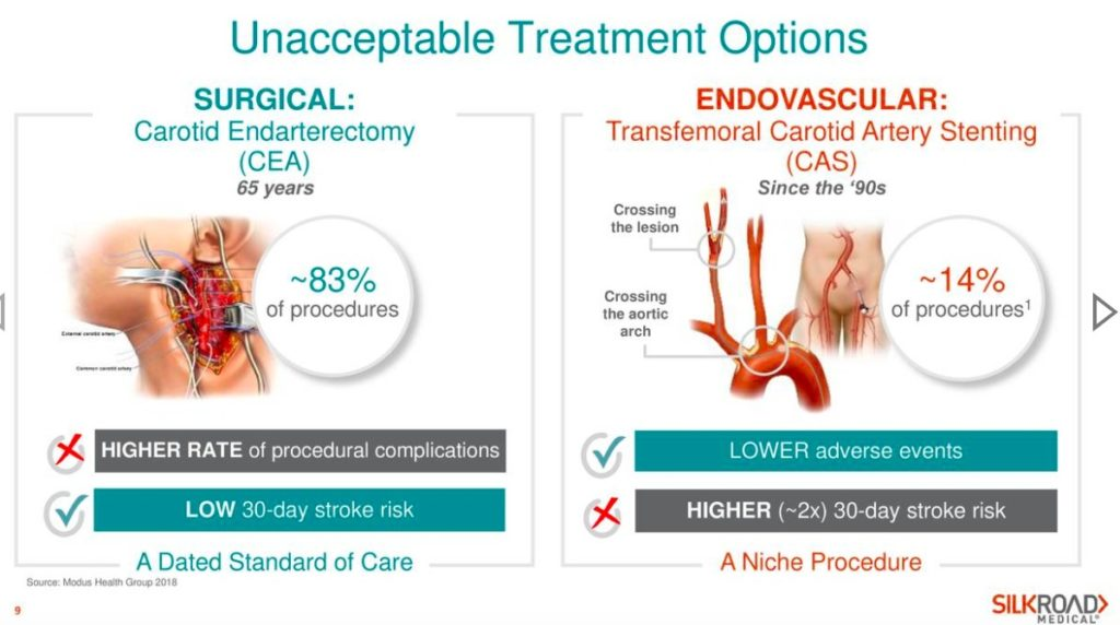 Carotid Endarterectomy (CEA) and Carotid Artery Stenting (CAS)